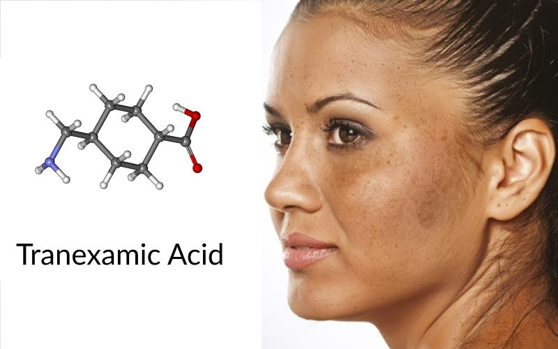 Tranexamic acid là một dạng tổng hợp của lysine
